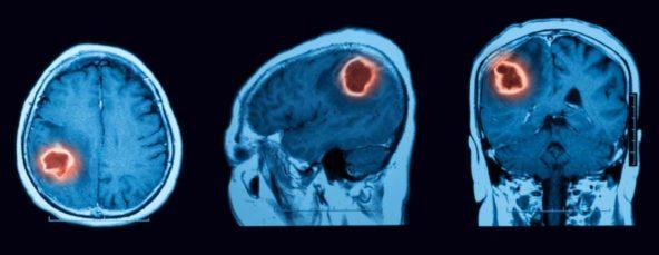 Gehirntumor im MRT-Scan